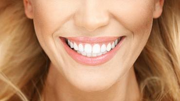 Checklist: Smile Bright